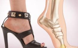 Tuyệt chiêu đi giày đẹp mà không đau chân