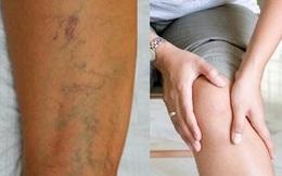 Nổi gân xanh trên cơ thể, chỉ điểm bệnh gì?