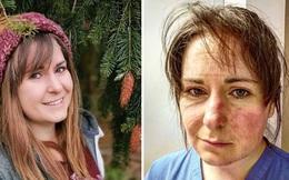 Nữ y tá xinh đẹp chia sẻ hình ảnh gương mặt biến dạng, đã đi qua 'địa ngục' sau 65 tiếng làm việc và lời khẩn cầu dành cho tất cả mọi người