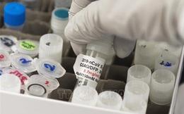 Chính phủ Mỹ tiết lộ chi tiết nghiên cứu tia cực tím tiêu diệt virus SARS-CoV-2