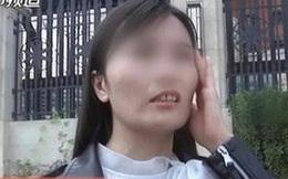 """Tin vào """"bí quyết vượng phu"""", người phụ nữ vung tiền đến viện thẩm mỹ để thay đổi nhân tướng, kết quả khiến cô và bạn trai thất vọng"""