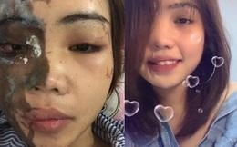 Vụ cô gái bị chồng sắp cưới tạt axit biến dạng gương mặt: Sau một năm đã trở lại với nụ cười xinh đẹp rạng rỡ