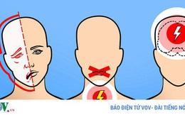 6 dấu hiệu cảnh báo cơn đột quỵ não