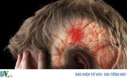 Phình động mạch não - bệnh lý nguy hiểm có thể gây tử vong