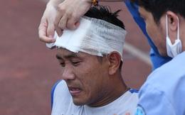 Giao hữu Hà Nội FC - Than Quảng Ninh: Cầu thủ khách rách đầu, phải đi cấp cứu vì choáng sau pha va chạm cực mạnh