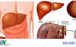 Người bệnh nhiễm trùng gan nên ăn những thực phẩm này