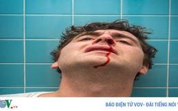 Hãy thử các biện pháp này để ngăn chảy máu cam nhanh chóng