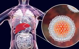 1/6 bệnh nhân ung thư có liên quan đến viêm: Nếu gặp tình trạng viêm ở 3 bộ phận này, tuyệt đối đừng chủ quan
