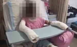 Suýt bị thiêu cháy toàn thân, thắt cổ chết tức tưởi và hàng loạt những bi kịch nhói lòng từ trò nghịch dại trẻ em học theo trên Youtube