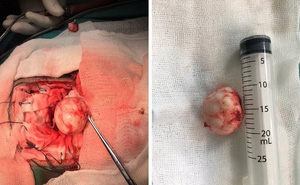 Phẫu thuật u màng não rãnh khứu kích thước lớn cho cụ bà 81 tuổi