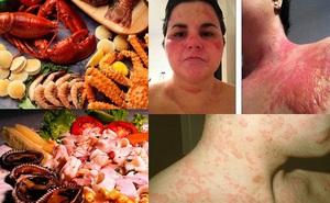Đừng coi thường ngộ độc hải sản: Nhiều trường hợp ngộ độc phải thở máy, độc tố nấu chín không diệt nổi