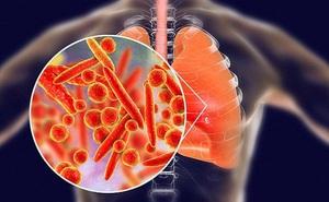 4 cách đơn giản giúp bạn nuôi dưỡng phổi khỏe mạnh, tránh xa bệnh tật trong mùa đông