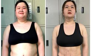 """""""Hot girl trăm cân"""" Thủy Tiên sau lần cắt 4kg mỡ và hút 8 lít mỡ thừa giờ ra sao?"""