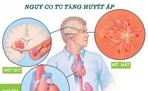 12 triệu người Việt mắc căn bệnh gây ra tai biến mạch máu não: Bộ Y tế đề nghị giảm ăn muối