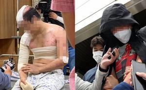 Hàn Quốc: Người đàn ông bị em trai dụ đến ở chung nhà chỉ trong 2 tháng, thân tàn ma dại vì bị hành hạ, đổ nước sôi lên người