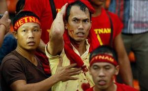 [Ký ức] Fan Việt đổ máu nơi đất khách & án phạt đích đáng cho những hooligan Malaysia