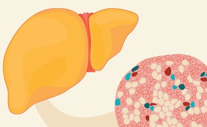 Gan nhiễm mỡ: Nhận biết dấu hiệu, nguyên nhân và điều trị sớm để ngừa xơ gan