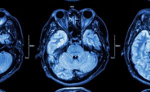Chuyên gia Pháp cảnh báo: Covid-19 có thể làm hình thành các nốt sần trong mắt, phá hủy thị lực