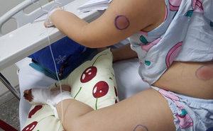 Bị gà mổ, bé gái 6 tuổi mắc khuẩn ăn thịt người