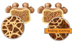 Chuyên gia khuyến cáo: Để ngăn ngừa loãng xương, quan trọng là phải uống nước đúng cách