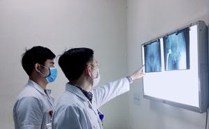 BS BV Việt Đức: Chưa thể lý giải được trường hợp 22 tuổi hoại tử chỏm xương đùi quá sớm
