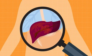 Gan kém có 4 dấu hiệu rõ rành rành sau, cần gặp bác sĩ ngay: Tuyệt chiêu bảo vệ gan trước khi quá muộn