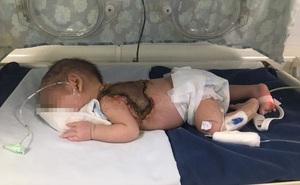 Bé sơ sinh 15 ngày tuổi bị nhiễm trùng huyết sau khi được chích mụn tại nhà
