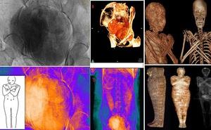 Phát hiện chấn động: Xác ướp Ai Cập cổ đại đầu tiên trên thế giới có bào thai trong bụng - Điều khiến chuyên gia kinh ngạc là gì?