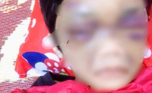 Khởi tố người mẹ nhẫn tâm hành hạ dã man con gái 6 tuổi