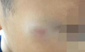 Cậu bé tiểu học bị cô giáo đánh tím mặt: Cô bị đình chỉ ngay lập tức nhưng hành động trước đó của đứa trẻ khiến MXH tranh cãi