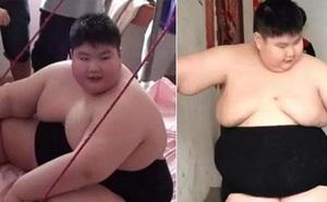 14 tuổi nặng 180 kg, cậu nhóc ăn gấp 7 lần người bình thường, phụ huynh phải lên YouTube cầu viện ''cứu trợ''