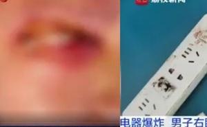 Nam thanh niên suýt mù vì củ sạc điện thoại phát nổ khi đang ngủ