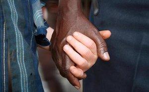 Tazania: Chặt tay người bị bạch tạng để cầu may