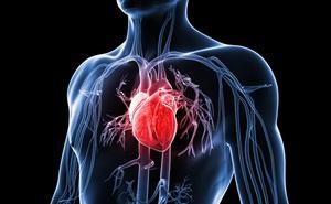 Mắc bệnh tim mạch chỉ từ 10 lý do ít ai ngờ tới