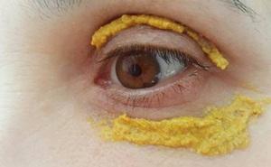 Phương thuốc kỳ diệu của Ấn Độ chữa nhiều bệnh bằng bột nghệ
