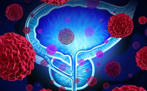 """Bệnh ung thư phá hoại """"ham muốn phòng the"""" ở nam giới: 6 bước ngừa bệnh trước khi quá muộn"""