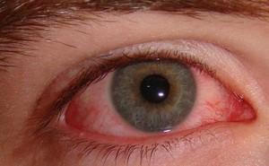 Nhìn vào người đau mắt đỏ có bị lây?
