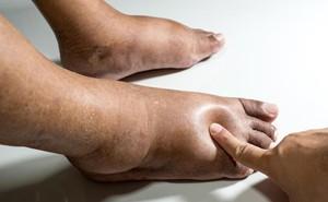 5 hiểu nhầm về công dụng của bồn ngâm chân hồng ngoại