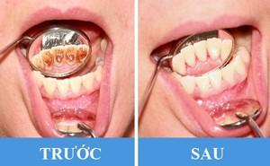 """8 sai lầm phổ biến gây hại răng miệng: Chắc chắn ai cũng """"dính"""" ít nhất một cái"""