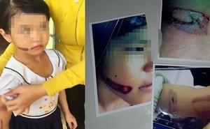 """Mẹ ruột của """"bé gái nghi bị gí sắt nóng"""" nói có người nhắn tin dọa sẽ giết cả nhà"""