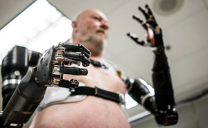Người đàn ông đầu tiên trên thế giới sống với cánh tay robot điều khiển bằng trí não