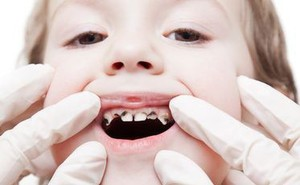 5 quan niệm sai lầm khiến trẻ bị hỏng răng ngay từ nhỏ, các bậc cha mẹ cần chú ý