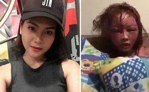 Thái Lan: Cô gái bị bạn trai cuồng ghen livetream cảnh đánh đập, đốt tóc đến biến dạng mặt