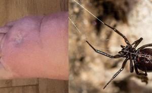 Người đàn ông đang làm vườn thì nhện cắn, 2 ngày sau phát bệnh rồi bị cưa mất một chân