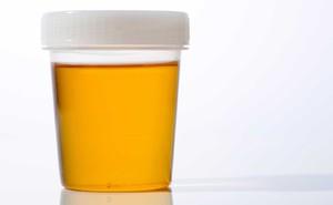 Tự khám bệnh qua màu sắc nước tiểu: Tất cả mọi người nên biết để phòng bệnh hiệu quả