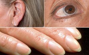 Chỉ cần nhìn dấu hiệu này ở mắt, tai và ngón tay, bạn sẽ biết mình bị bệnh tim