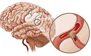 5 dấu hiệu của thiếu máu não: Dễ nhầm với bệnh khác nên nhiều người tử vong trong tích tắc