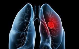 Bộ 3 xét nghiệm phát hiện sớm ung thư gan: GS Mai Trọng Khoa khuyến cáo những người nên làm