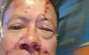 Khởi tố vụ Việt kiều Đức vô cớ bị nhóm thanh niên đánh trong quán karaoke ở TP.HCM