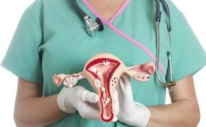 Dấu hiệu cảnh báo sớm về ung thư buồng trứng